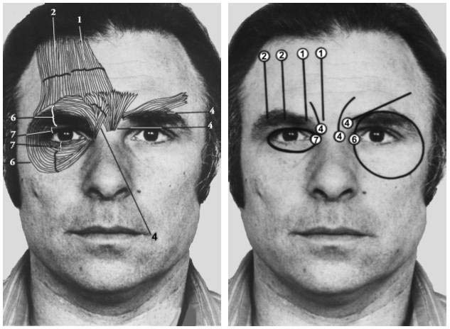 Figure 5B: Facial muscles moving eyebrow and muscles around the eye when expressing different emotions